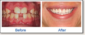 Dental implants-before and after 1